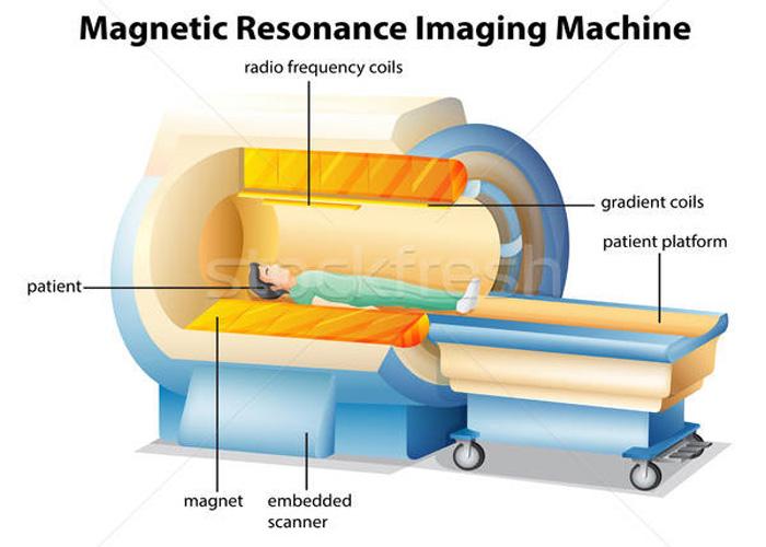 ساختار MRI