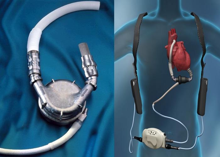 دستگاه کمک بطنی/ VAD